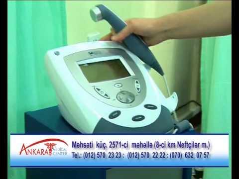 Oynaq Xəstəlikləri - Ankara Medical Center