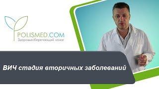 видео Лимфаденопатия