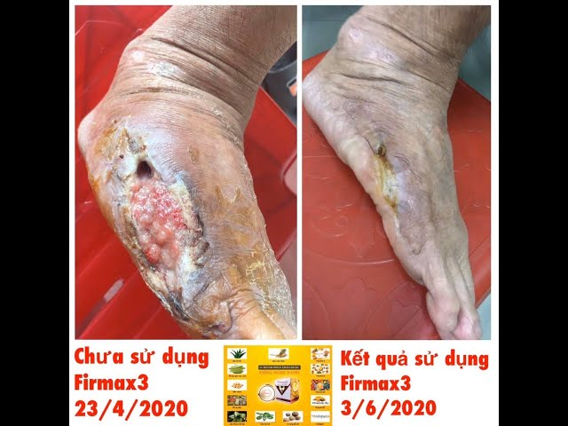 Firmax3 hỗ trợ điều trị chân bị hoại tử