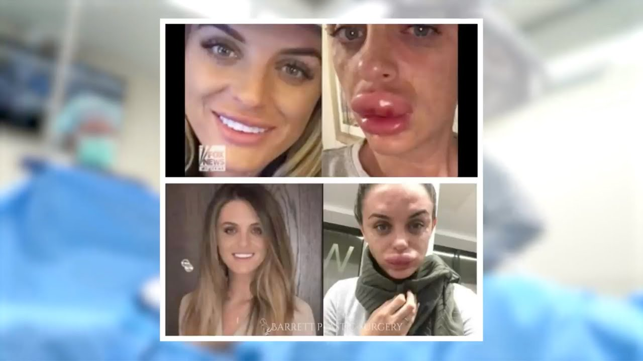 Botox and Fillers Gone Wrong!!   Dr. Daniel Barrett Discusses Botched Injectables Gone Wrong