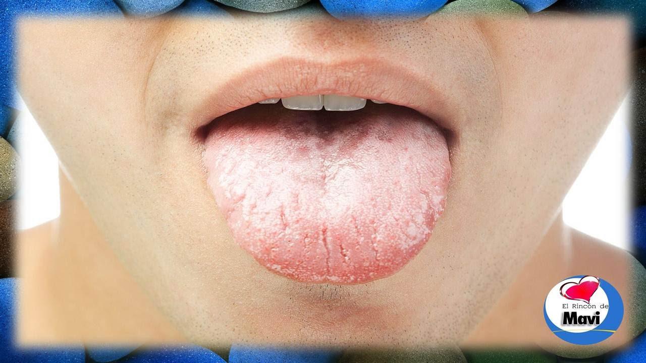 Tengo la lengua blanca y agrietada