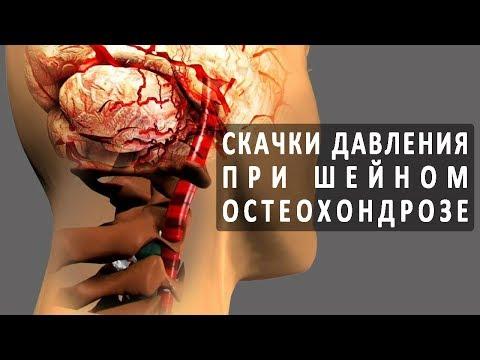Остеохондроз может повышать сердечное давление