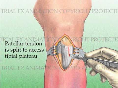 tibial-fracture-repair-with-titanium-intramedullary-rod