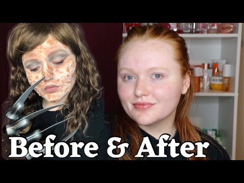 REMOVING SFX MAKEUP & How To Keep Skin Clear | Skincare Sunday #28 | AllyBrianne
