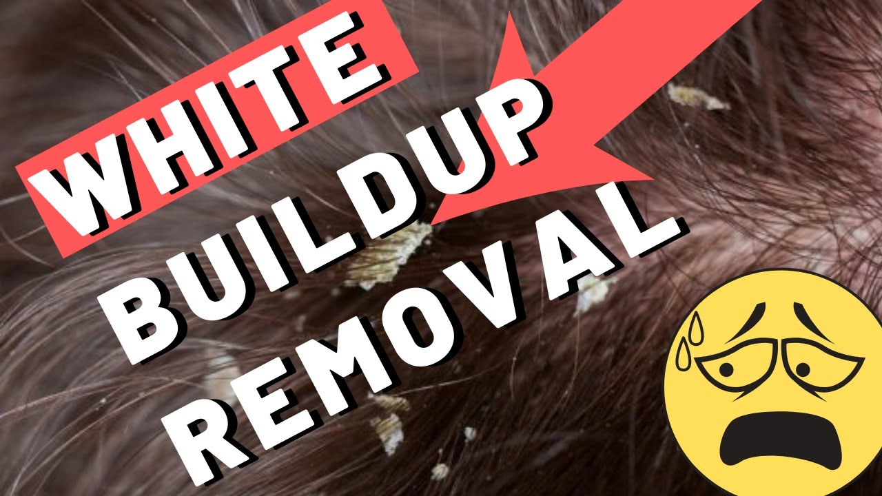 2 Fast Ways To Get Rid Of White Build Up On Scalp