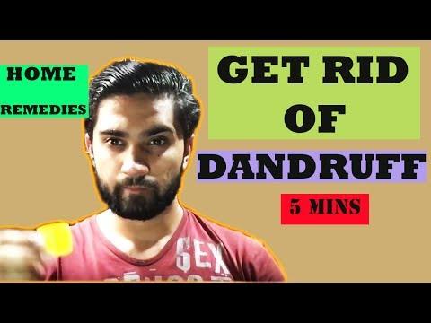 Remove dandruff at home naturally    Get rid of dandruff in hindi