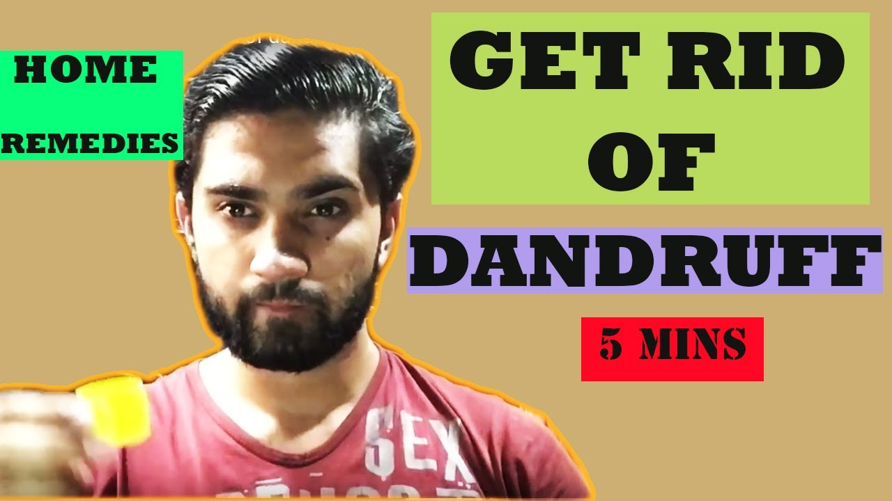 How To Control Dandruff Naturally At Home