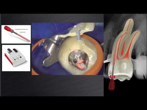 Dr. Peet van der Vyver uses GuttaCore and Calamus Dual | Dentsply Sirona