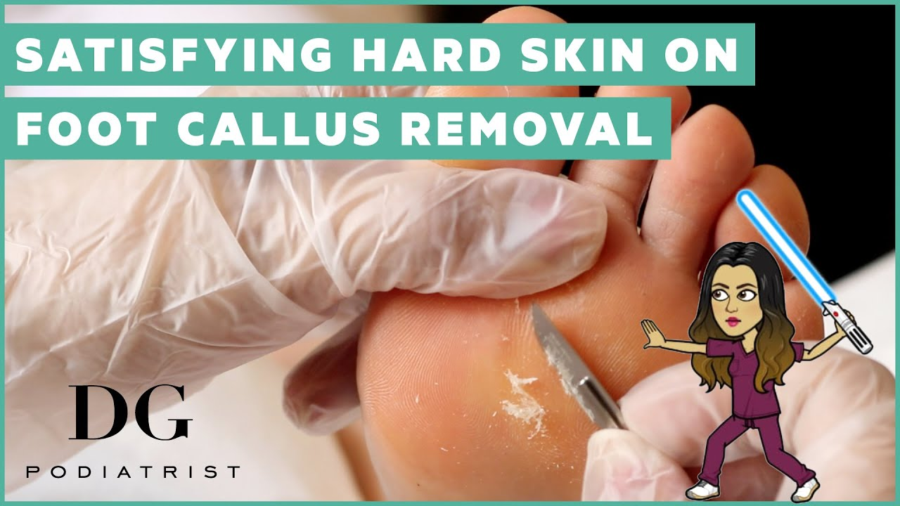 Satisfying hard skin on foot callus