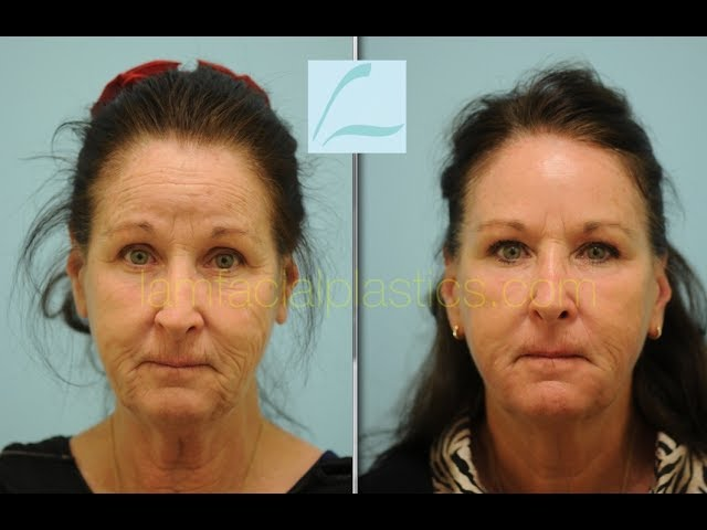 Sciton Contour TRL Laser Resurfacing Testimonial in Dallas, Texas