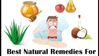 The Best Home Remedy For Sunburn