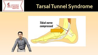 www.ProActiveSF.com 5 Exercises to Heal Tarsal Tunnel Syndrome | Tarsal Tunnel Syndrome Exercises Pr.
