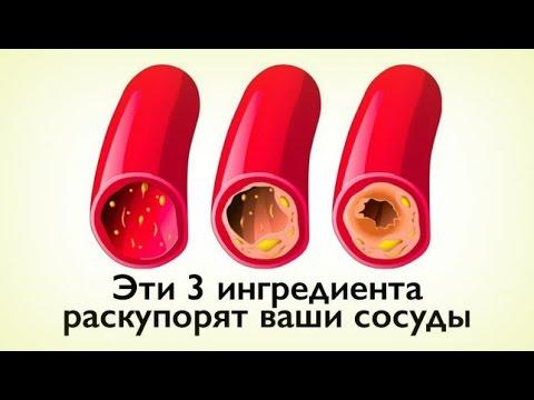 Чеснок – польза и вред, лечение чесноком, как избавиться