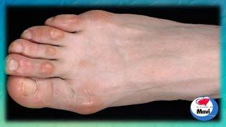 Como quitar los callos de los dedos de los pies - Callos en los pies tratamientos naturales