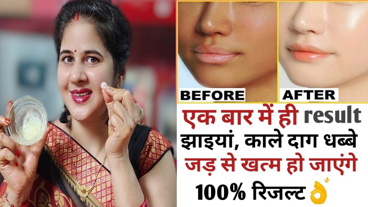 एक बार रात में सोते समय लगा लेना चेहरे की झाइयां, कालापन, दाग धब्बे,acne जड़ से खत्म 100% गारंटी
