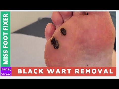 wart foot black)