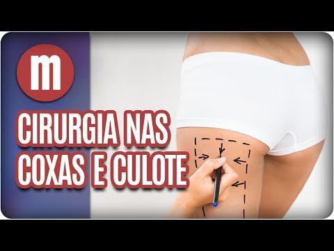 Cirurgia plástica nas coxas e culote  - Mulheres (07/07/17)