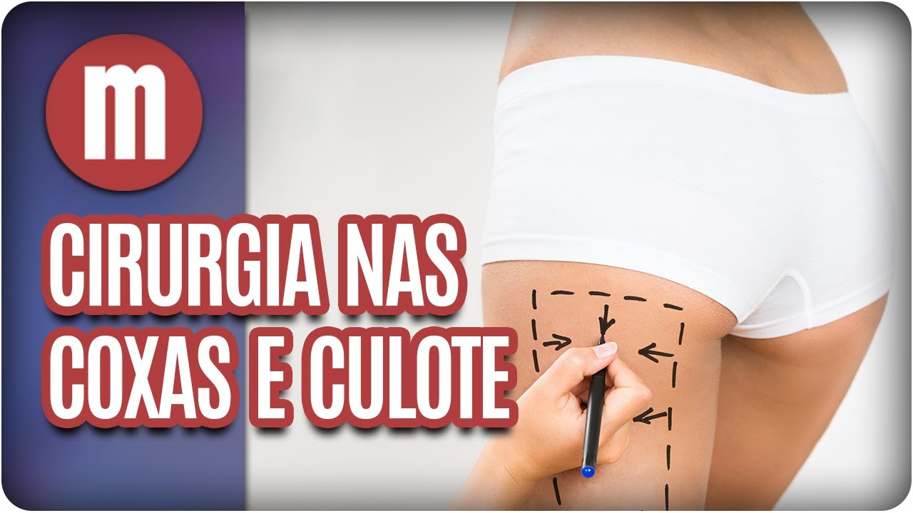 1357187c1 Cirurgia plástica nas coxas e culote - Mulheres (07 07 17) - YouTube