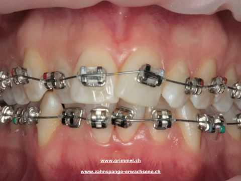 Sich schneidezähne verschieben Zähne verschoben