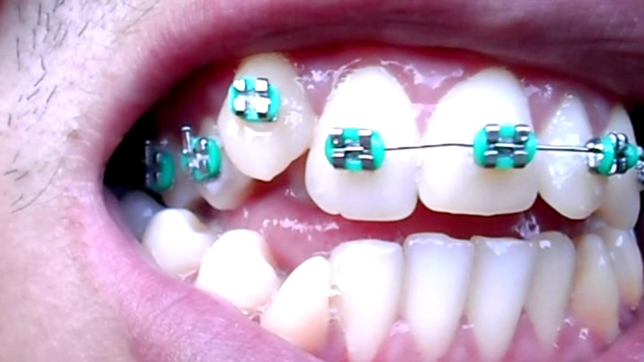 Aparelho Ortodontico Dentes Tortos Youtube