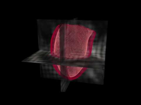 Intricate 3D model predicts when heart patients will die