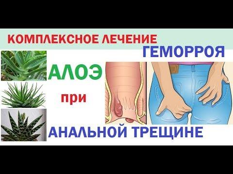 Комплексное лечение геморроя и анальной трещины/Алоэ для лечения геморроя и анальных трещин