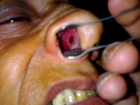 Nasal Septum Perforation