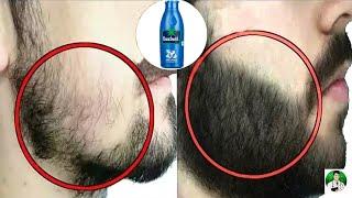 দাড়ি বের করুন ঘরে বসেই ১০০% গ্যারান্টি।। চাপ দাড়ি ঘন দাড়ি পাওয়ার উপায়।। How to grow beard Fast