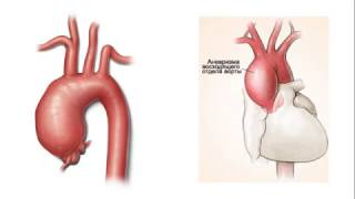 Выраженная аортальная недостаточность. Отзыв пациентки