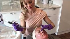 Willow Med Spa & Salon Collagen PIN - MicroNeedling