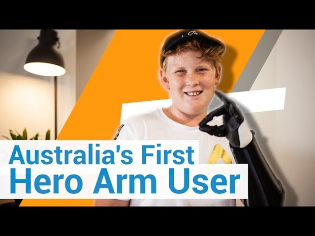 John - First Ever Hero Arm User in Australia!