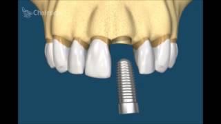 Как лечить разрушенный или некрасивый передний зуб. Ортодотия. Имплантология. Стоматология .(, 2015-06-10T19:07:17.000Z)