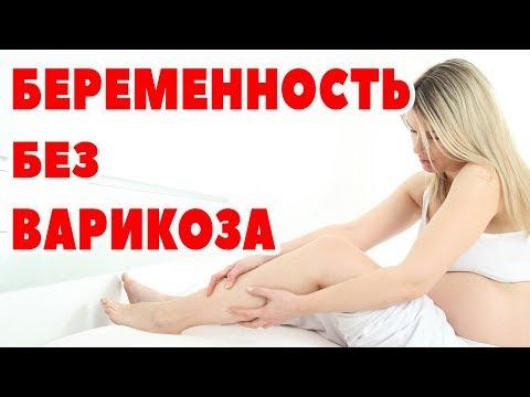 Беременность без варикоза / Как предотвратить варикозное расширение вен / Компрессионный трикотаж