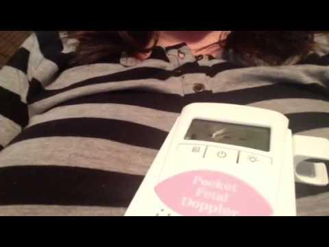 Sonoline B Doppler Use 10 Weeks Fetal Heart Rate Youtube