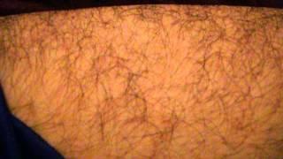 Tortures - Microcontracture/spasme musculaire à la cuisse 2