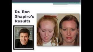 Hair Transplant Surgery Result with Shapiro Medical Group Women