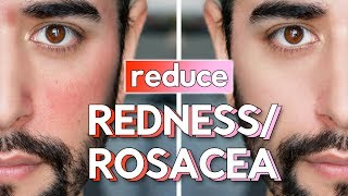 Red Skin & Rosacea On Face - Skin Care Routine, Hacks & Fixes ✖ James Welsh