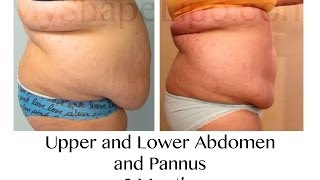 MyShape Lipo - Large Volume Liposuction to Abdomen