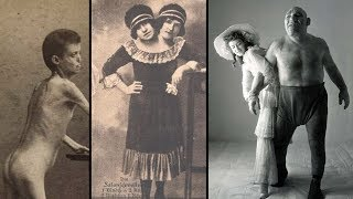 The Dark History of FREAK SHOWS