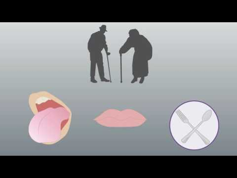 Oral strength and nutrition-related sarcopenia - Video Abstract ID 141148
