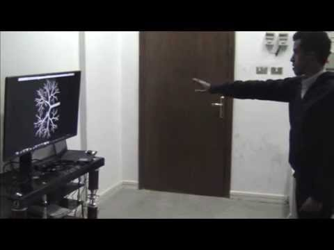 Kinect with 3D model Angiography