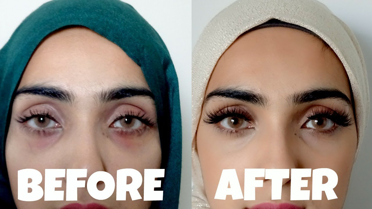 Get Rid Of Eye Bags Naturally