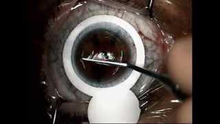 laser miopia lasik by Tsioumas Sotiris 8.avi