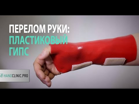 При переломе руки возле кисти накладывают лангетку?