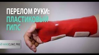 Перелом руки: пластиковый гипс при переломе лучевой кости ОЧЕНЬ УДОБНО!(, 2013-04-26T18:25:52.000Z)