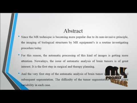 Brain Tumor Detection using CNN by Shabir Ahmed by Faisal