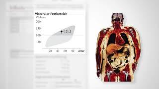 InBody770 - Befundbogen erklärt - Körperzusammensetzungsanalyse
