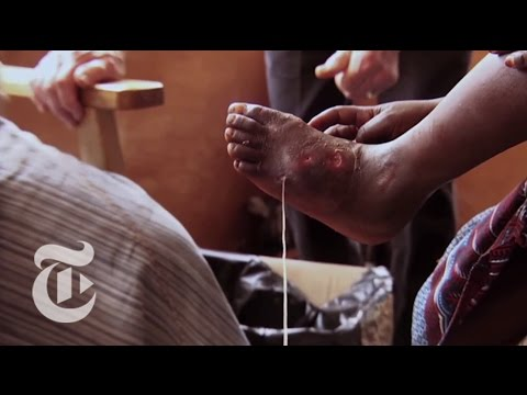 The Guinea Worm Slayer - 2013 | The New York Times