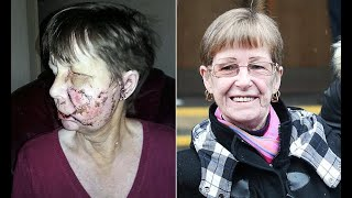 Mother left scarred for life after being savaged by a dog
