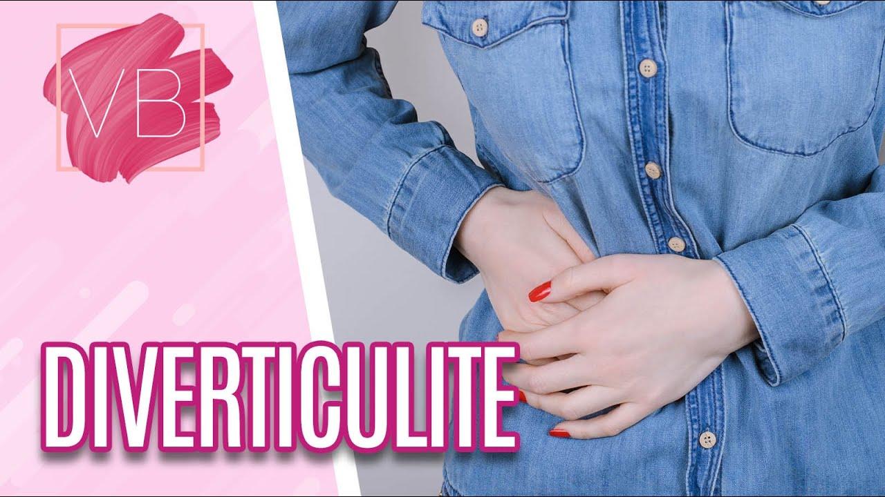 Diverticulite: o que é, causas, sintomas e tratamentos - Você Bonita (01/07/20)